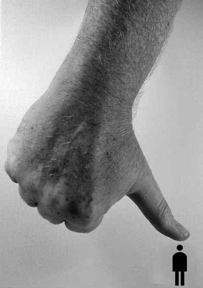 sindrom izgaranja